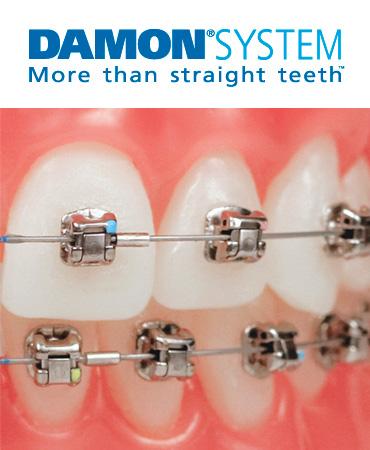 Clinica dental juan carlos pina lopez - Como alinear los dientes en casa sin brackets ...